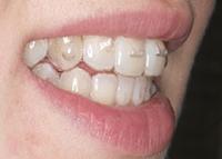 Zähne mit fast unsichtbarer Zahnspange