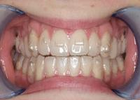 Gebiss mit unsichtbarer Zahnspange