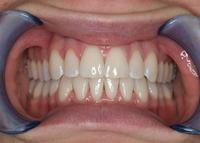 Korrigierte Zähne
