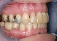 Zähne mit Plombe