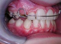 Zahnspange Jugendliche